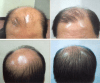 i-Restore-helmet-laser-hair-growth-europe-norge-denmark-sweden-suomi-before-after