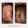 irestore-pro-uk-europe-laser-hair-growth-system-4