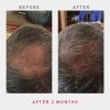 irestore-pro-uk-europe-laser-hair-growth-system-8